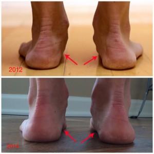 foot_arch_improvement_minimal_trrainer