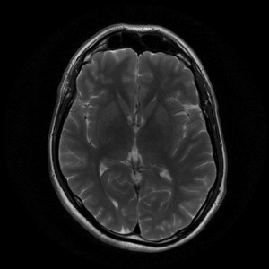 Missing a certain protein can promote memory loss