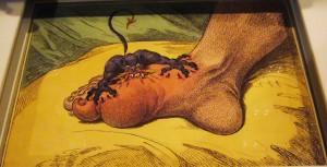 Representation of gout